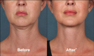 KYBELLA Double Chin Reduction Fort Worth Arlington TX